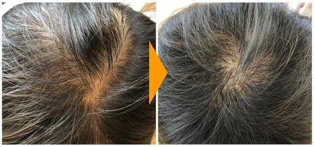 発毛 薄毛 60代女性 1ヶ月経過 びまん性脱毛症 FAGA